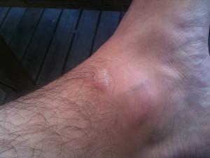 Ett infekterat sår efter att en självmordsbitare anfallit